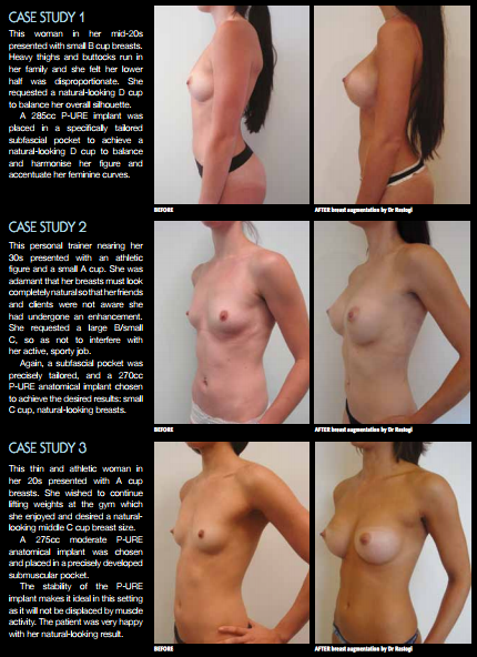 Breast Implants Dr Rastogi