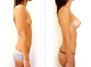 <p>Breast augmentation, before and after 01</p>