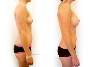 <p>Breast implants before & after 10</p>