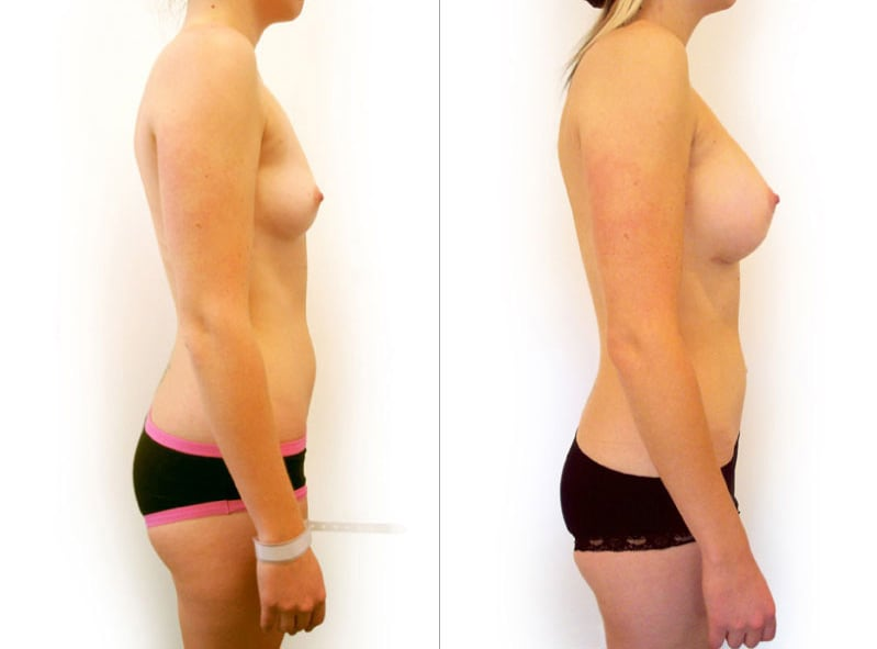 After breast agmentation