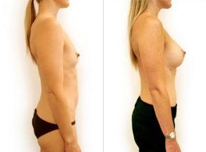 <p>Breast augmentation, Dr Rastogi B&A 12</p>