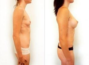 <p>Breast augmentation gallery, photo 13</p>