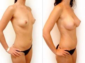 <p>Breast enlargement photo 14</p>