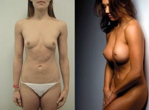 <p>Gorgeous patient before & after breast enlargement 15</p>