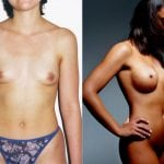 <p>Breast augmentation patient, before & after photo 19</p>
