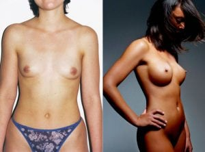 <p>Breast augmentation patient, before & after 19</p>