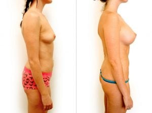 <p>Dr Rastogi, breast augmentation BA 02</p>