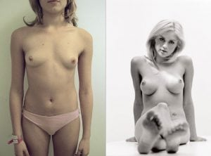 <p>Breast implants before & after 20</p>