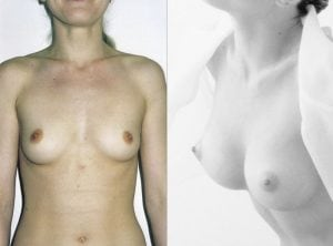 <p>Breast augmentation surgery, B&A 23</p>