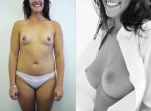 <p>Breast implants surgery B&A 24</p>