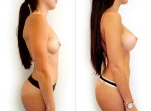 <p>Breast augmentation with implants 03</p>