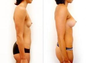 <p>Breast augmentation 04, right side</p>