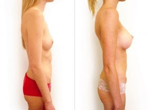 <p>Before & after breast augmentation 06</p>