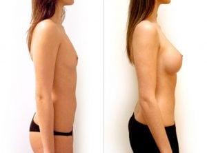 <p>Breast augmentation B&A 07</p>