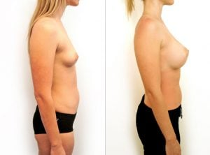 <p>Before & after breast augmentation 08</p>