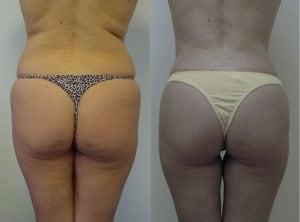 <p>Liposculpture patient before & after, photo 01</p>