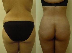 <p>Female patient after liposculpture procedure, photo 10</p>