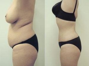 <p>Liposuction patient, side view, photo 11</p>