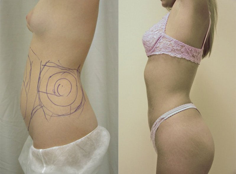 Liposculpture before and after, featured photo for gallery