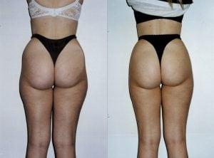 <p>Female patient, back view, liposuction photo 14</p>