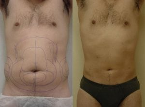 <p>Before & after liposculpture, photo 03</p>
