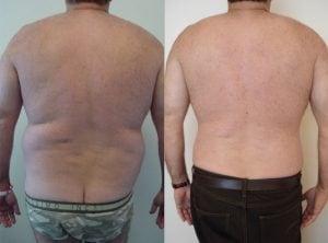 <p>Patient before & after liposculpture, photo 05</p>