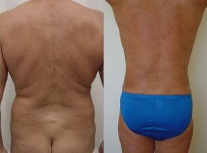 <p>Before & after liposculpture, photo 07</p>