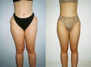 <p>Thighs liposuction, female patient, photo 08</p>
