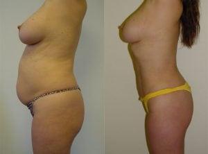 <p>Liposuction, female patient, photo 09</p>