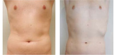Liposuction For Men Case 01