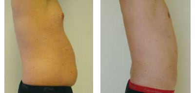 Liposuction For Men Case 02