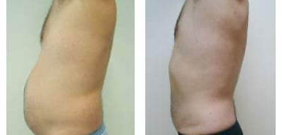 Liposuction For Men Case 03