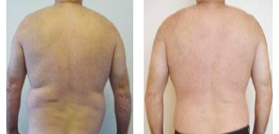 Liposuction For Men Case 04