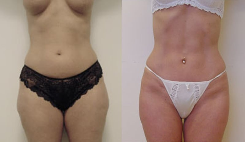 Mini tummy tuck before and after - image 1