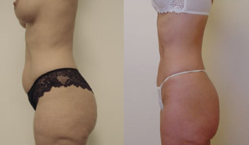 Mini tummy tuck before and after - image 2