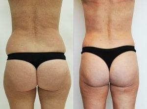 <p>Liposuction photo 15, back view</p>