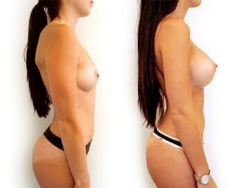breast augmentation before and after - image 001 - side view