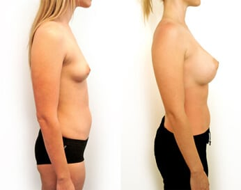 breast augmentation before and after - image 002 - side view