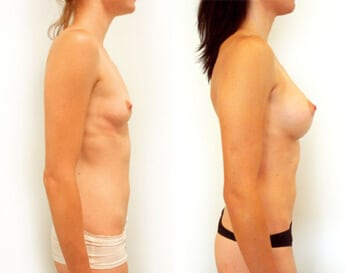 breast implants before and after - image 003 - side view