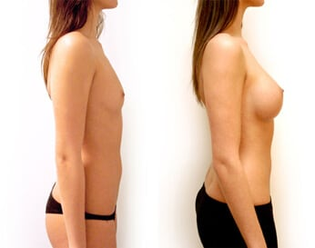 breast implants before and after - image 004 - side view