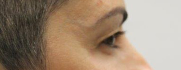 Patient after eyelid surgery, model 04
