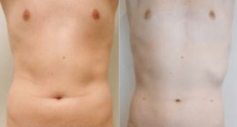 liposuction for men before and after - image 01 - front view
