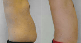 male liposculpture before and after - image 02 - side view