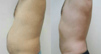 liposuction for men before and after image 02 - side view