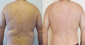 before and after male liposculpture - image 04 - back view