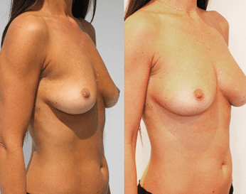 fat transfer to breast before and after - image 01