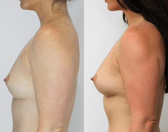 fat transfer breast augmentation before and after - image 02 - side view