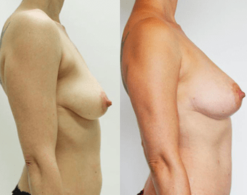 fat transfer to breast before and after - image 03 - side view