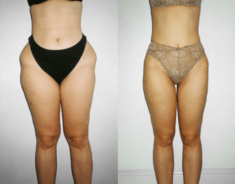 liposculpture before and after - image 01