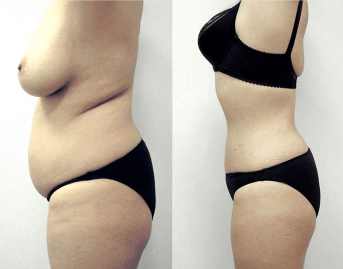 woman liposculpture before and after - image 02